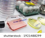 new strain of H5N8 avian influenza infected in humans, petri dish with samples, conceptual image