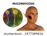 Cutaneous mucormycosis, a disease caused by fungi Mucor, also known as black fungus, 3D illustration showing skin leasion and closep view of Mucor fungus. Covid-19 complication