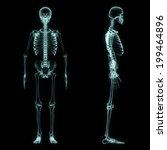 X Ray Full Body Of Skeleton In...