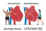 data comparison of normal heart ... | Shutterstock .eps vector #1995380780