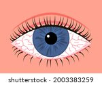 inflamed sick human eye with...   Shutterstock .eps vector #2003383259