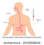 tpn ppn total tube nutritional... | Shutterstock .eps vector #2010008636