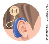 cochlear implant. hearing aid... | Shutterstock .eps vector #2035894763