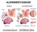 brain diseases  alzheimer's... | Shutterstock .eps vector #2038661366