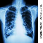 "Small photo of ""Bronchiectasis"" X-ray chest show : multiple lung bleb and cyst due to chronic infection"