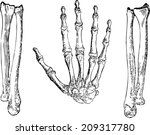 Bones Of The Hands  The Hand ...