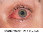 the viral conjunctivitis during ... | Shutterstock . vector #215117668