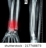 x ray image show fracture bone | Shutterstock . vector #217768873