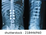 x ray image of neck show neck... | Shutterstock . vector #218446960