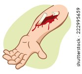 illustration of a human arm... | Shutterstock .eps vector #222995659