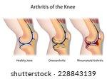 types of arthritis of the knee... | Shutterstock . vector #228843139