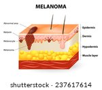 melanoma or skin cancer. this... | Shutterstock .eps vector #237617614