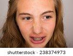 teenage girl with braces | Shutterstock . vector #238374973