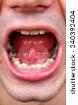 Small photo of Outbreaks of tartar and amalgam fillings