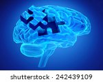 Stock photo human brain research and memory loss as symbol of alzheimer s concept with missing pieces of the 242439109