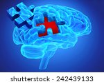 Stock photo human brain research and memory loss as symbol of alzheimer s concept with missing pieces of the 242439133