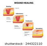phases of the wound healing