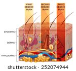 skin burn classification. first ... | Shutterstock .eps vector #252074944