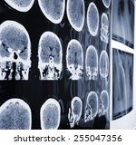 unusual view of the mri  x ray... | Shutterstock . vector #255047356