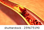 clogged artery with platelets...   Shutterstock . vector #259675190