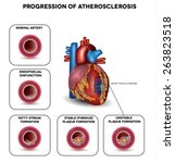progression of atherosclerosis... | Shutterstock .eps vector #263823518