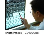 young male doctor looking at CT film - stock photo