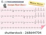 electrocardiogram   ecg   ekg   ...   Shutterstock .eps vector #268644704