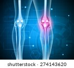 knee pain abstract background.... | Shutterstock .eps vector #274143620