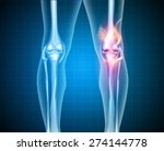 burning knee  painful knee and... | Shutterstock .eps vector #274144778