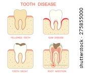 Tooth Decay Disease Periodonta...