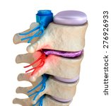spinal cord under pressure of... | Shutterstock . vector #276926933