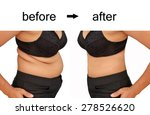 woman's body before and after a ... | Shutterstock . vector #278526620