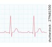 Medical Electrocardiogram   Ec...