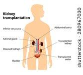kidney transplantation or renal ... | Shutterstock . vector #280967030