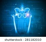 human pelvis hip pain  abstract ... | Shutterstock .eps vector #281182010