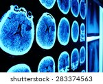 skull ct scan picture on the... | Shutterstock . vector #283374563