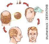 hair transplantation | Shutterstock .eps vector #283547048