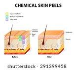 chemical peeling or procedure... | Shutterstock .eps vector #291399458
