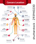 cancer infographics  cancer...   Shutterstock .eps vector #293940230
