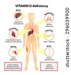 vitamin d deficiency. symptoms... | Shutterstock .eps vector #296039900