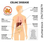 coeliac disease or celiac... | Shutterstock . vector #296735879