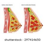 breasts during breastfeeding | Shutterstock . vector #297414650