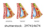 implants in the female breast... | Shutterstock . vector #297414674