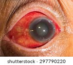 Small photo of close up of the acute glaucoma during eye examination.
