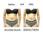 woman's body before and after a ... | Shutterstock . vector #300417890