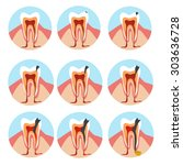 stages of tooth decay... | Shutterstock .eps vector #303636728