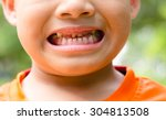 Close Up Child Caries