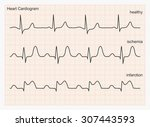 heart cardiogram waves. three... | Shutterstock .eps vector #307443593