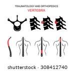 illustration of the spine ... | Shutterstock .eps vector #308412740