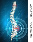 human spine showing back pain... | Shutterstock .eps vector #310254209